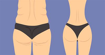 Como queimar gordura nas costas